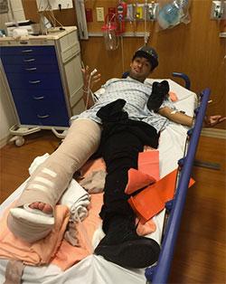 Pelo Instagram, Kelvin informou sobre o acidente. (@kelvinhoefler)